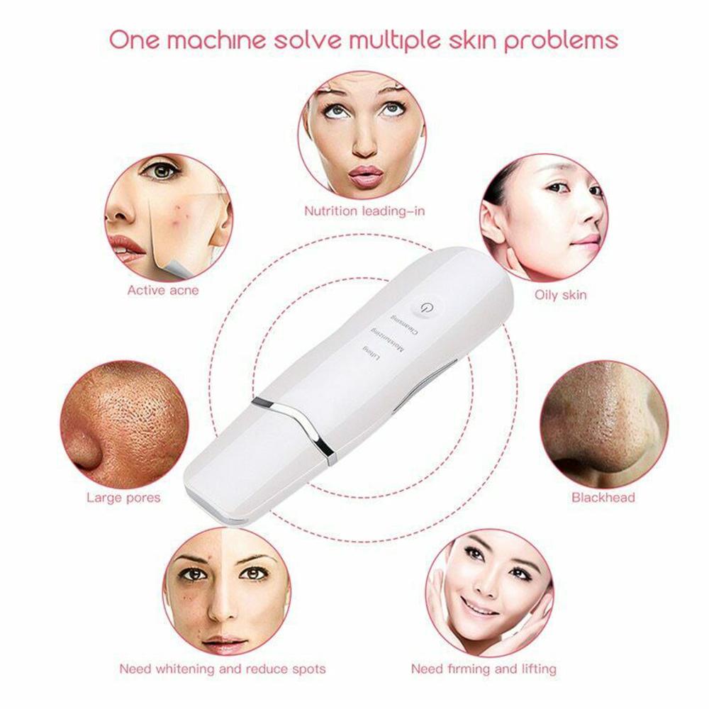 Ultra-Sonic Deep Facial Skin Cleansing Machine Facial Scrubber_5